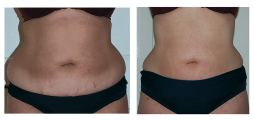 Home → Strawberry Laser Lipo Before &amp After Pictures